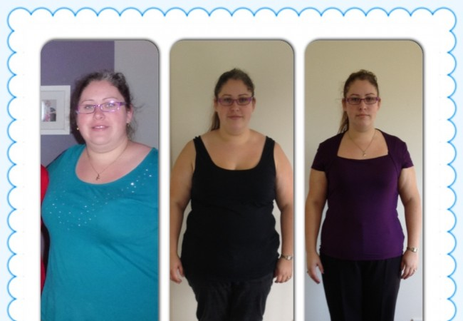 11 weeks out from gastric bypass surgery